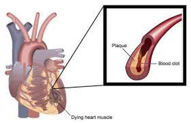 *Imagem de uma placa de ateroma rompida com formação de um trombo no local e infarto da área irrigada pela artéria.
